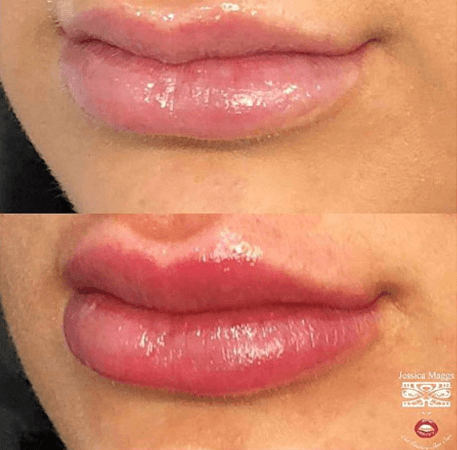 1ml of Lip filler @jessica_maggs for Amazing results