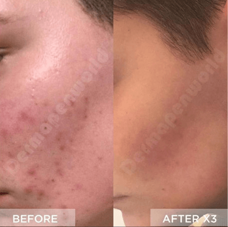 Dermapen results on Acne @dermmapenworld