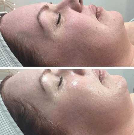 Dermaviduals - Detox Facial