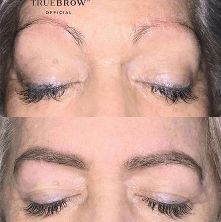 TRUEBROW - Before & After